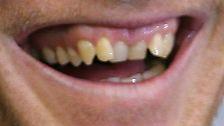 Mehr als Kauwerkzeuge: Zähne