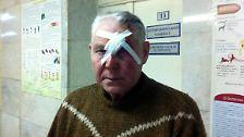 Laut dem russischen Innenministerium werden Hunderte Menschen verletzt.