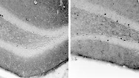 Bei der einen Maus (rechtes) führen Erfahrungen zu vielen neuen Nervenzellen (schwarze Punkte), bei einer anderen Maus (linkes) hingegen zu deutlich weniger neuen Nervenzellen.