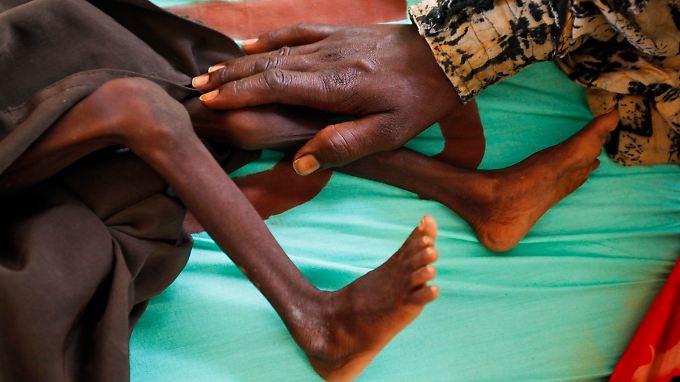 Viele Industrieländer kürzen ihre Hilfen für Hungernde infolge der Krise.