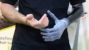 Prothese per App steuerbar: Bionische Hand fasziniert Messebesucher