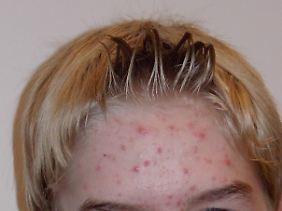 Akne auf der Stirn eines 14-Jährigen.