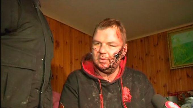 Aktivist verschleppt und gefoltert: Konfliktparteien in der Ukraine radikalisieren sich