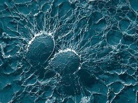 Mikroskopische Aufnahme von MRSA-Bakterien.