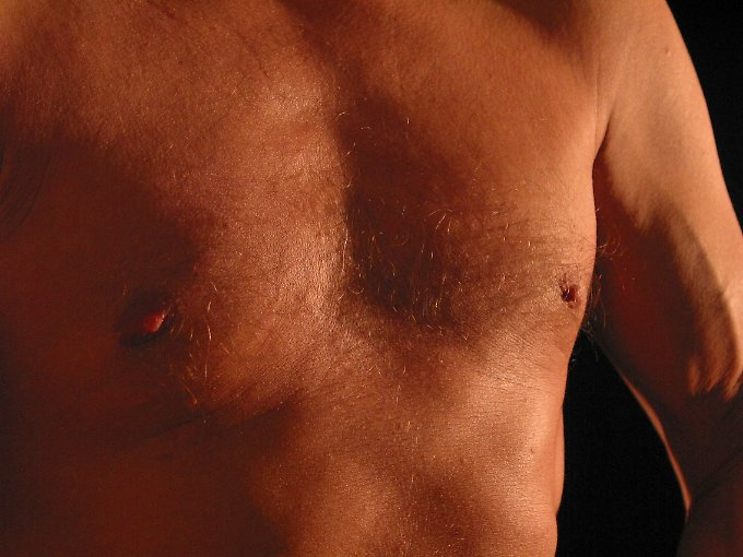 Viele wissen gar nicht, dass auch Männer Brustkrebs bekommen können.