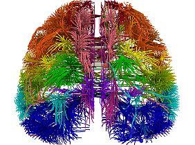 Die 3D-Ansicht eines Gehirns zeigt die Verbindungen zwischen mehreren verschiedenen kortikalen Arealen.