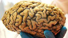 Das menschliche Gehirn ist einzigartig.
