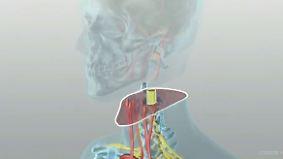 Umstrittene Kopftransplantation: Neurochirurg stellt Details seiner Pläne vor