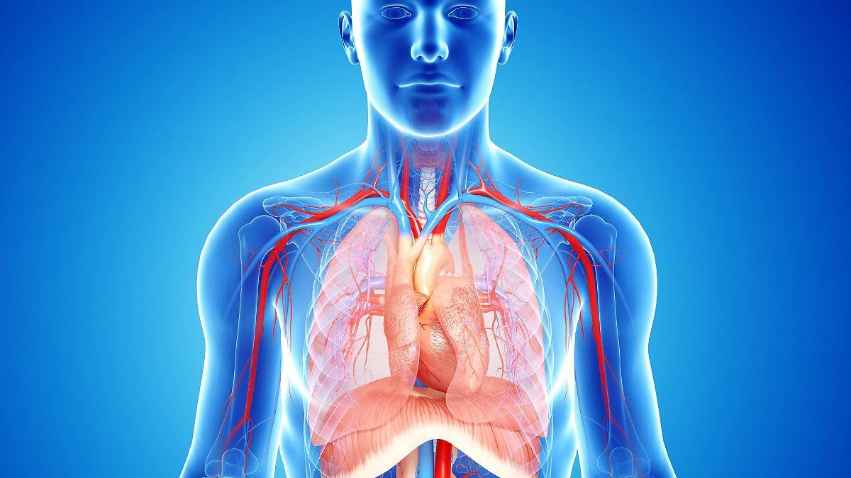 Wie Es Zur Lungenembolie Kommt Wer Ist Gefährdet Wie Beugt Man Vor