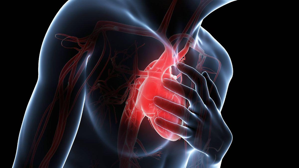 Viele Herzinfarkte verlaufen stumm