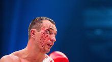 Nach Box-Demontage durch Fury: Ein Klitschko tönt, ein Klitschko zweifelt