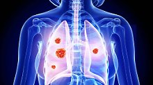 Lungenkrebs gehört zu den häufigsten Krebsarten. Raucher sind besonders gefährdet.