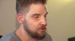 Fünf Jahre nach Komplett-Transplantation: Ex-Soldat spricht erstmals über sein neues Gesicht