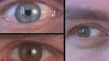 Defizite bei der Aufklärung: Augenlaser-Kliniken im Test