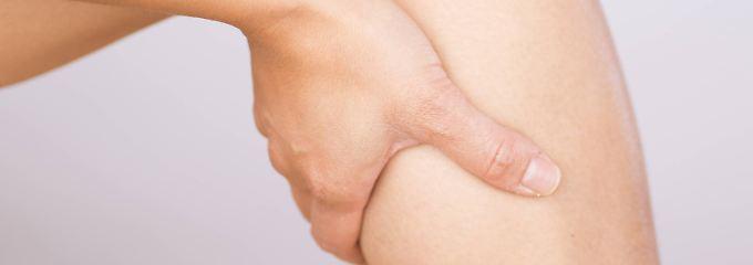 Frage & Antwort, Nr. 446: Entstehen Krampfadern durch Krämpfe?