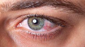 Hochansteckend, nicht zu behandeln: Was ist eine Augengrippe?