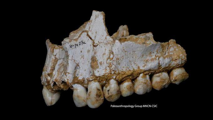 Verräterischer Zahnstein: Neandertaler nutzten Arznei-Stoffe.