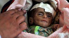 Internationale Hilfe gefordert: 20 Millionen Menschen drohen zu verhungern