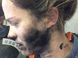 Frau erleidet Verbrennungen: Kopfhörer in Flugzeug explodiert