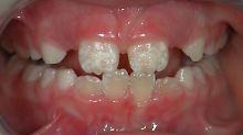 Mysteriöse Krankheit: Wenn Kinderzähne plötzlich bröckeln