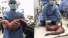 13 Kilogramm Fäkalien: Ärzte schneiden Riesen-Darm aus Bauch