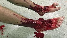 Blutiger Badeausflug: Mysteriöse Tiere zerfressen Australier die Füße