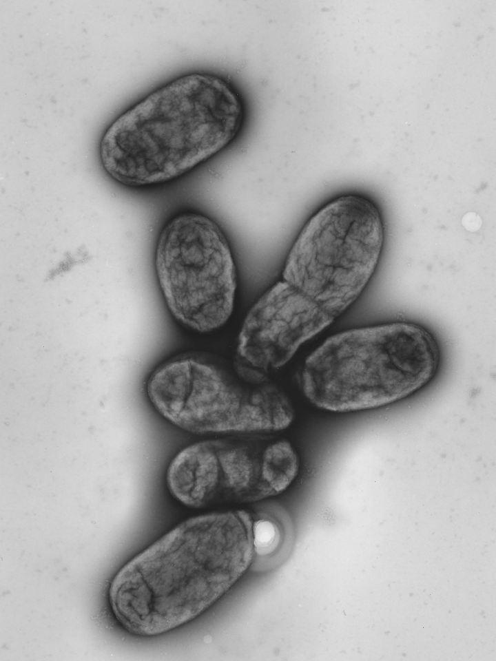 Pest-Bakterien unter dem Elektronenmikroskop.