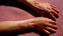 Günstige Gesundungszeiten: Brandwunden vom Tag heilen schneller
