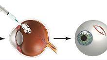 Notfallschutz vor Erblindung: Klebstoff verschließt verletzten Augapfel