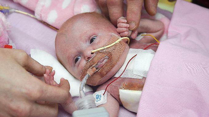 Drei schwere Operationen musste Vanallope schon überstehen, nachdem sie am 22. November mit einer Herzektopie zur Welt kam.