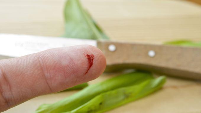 Für Menschen mit einer Blutphobie reicht ein kleiner Schnitt aus, um zu reagieren.