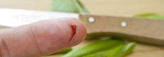 Frage & Antwort, Nr. 516: Warum können manche kein Blut sehen?