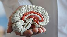 Blick in den Kopf: Menschliches Gehirn war nicht immer rund