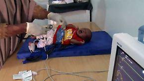 Ein Arzt für 10.000 Menschen: Somalias Säuglinge sterben in Hunger und Krieg