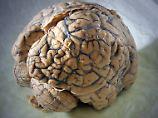 Nervenzellneubildung im Alter: Studie löst Wissenschaftskontroverse aus