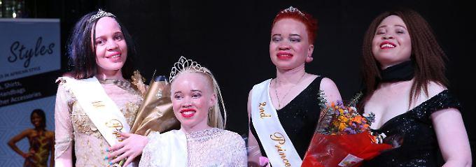 """Kampf gegen Diskriminierung: Erste """"Miss Albino Simbabwe"""" gekrönt"""