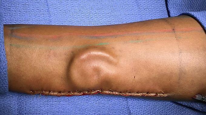 Ärzte verpflanzen Knorpel in Form eines Ohres in den Unterarm der Patientin.