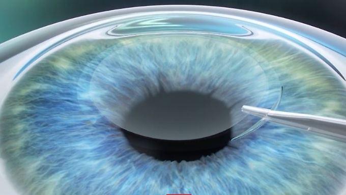 n-tv Ratgeber: Beratung bei Augenlaser-Kliniken offenbart Schwächen