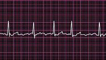 Herz-Kreislauferkrankungen sind mit einem Anteil von mehr als 38 Prozent die häufigste Todesursache in Deutschland.