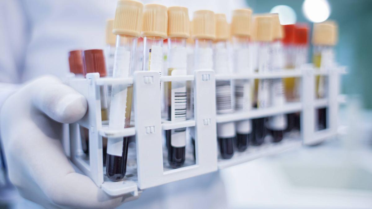 Alzheimer-Risiko ist im Blut erkennbar