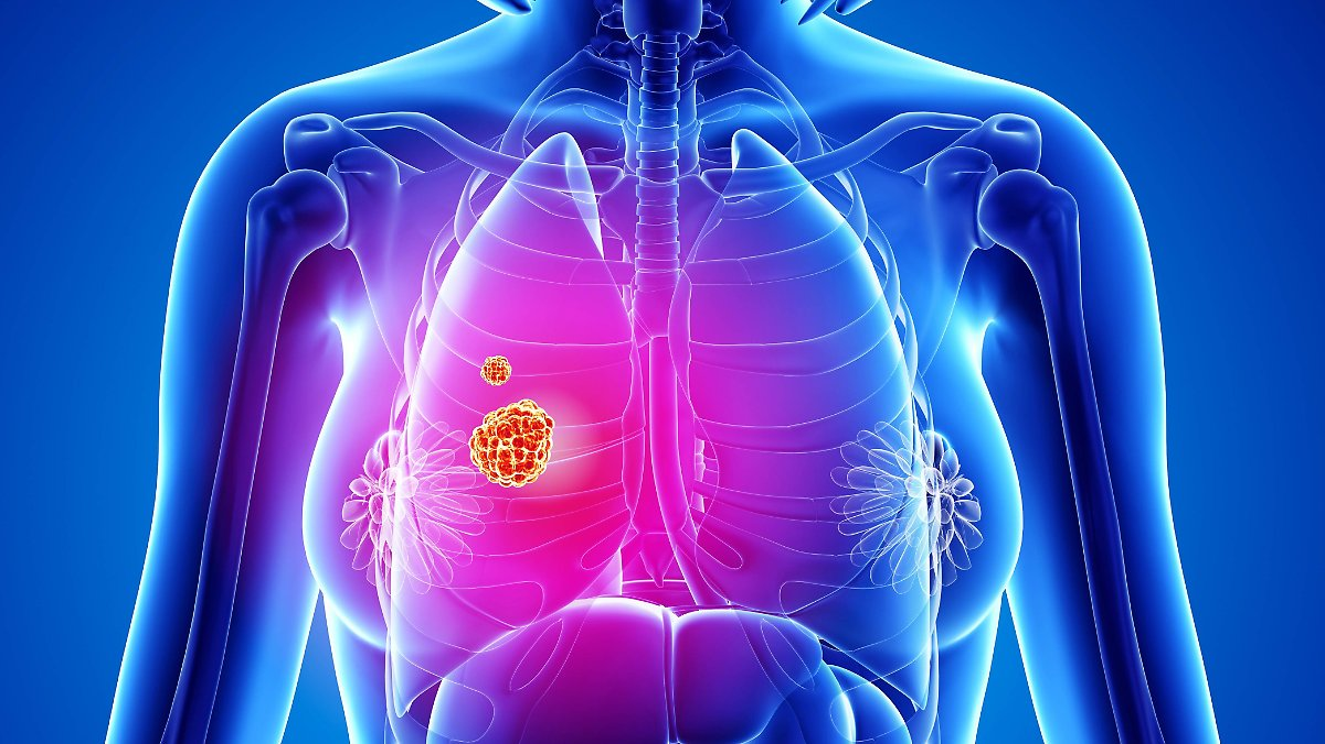 Neue Krebstherapie rettet Leben