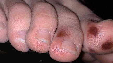Braune Flecken Fuß