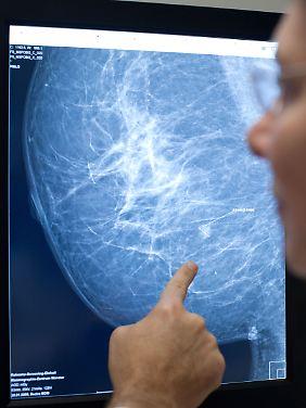 Vor allem Frauen, die erblich vorbelastet sind, sollten regelmäßige Vorsorgeuntersuchungen machen lassen.