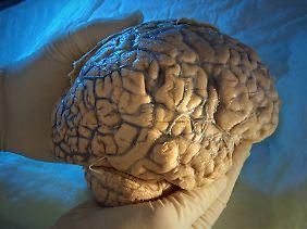 Bei chronischem Alkoholmissbrauch schrumpft das Hirngewebe.