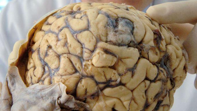 Neue Hoffnung für Parkinson-Patienten: Gen ins Gehirn eingebracht ...