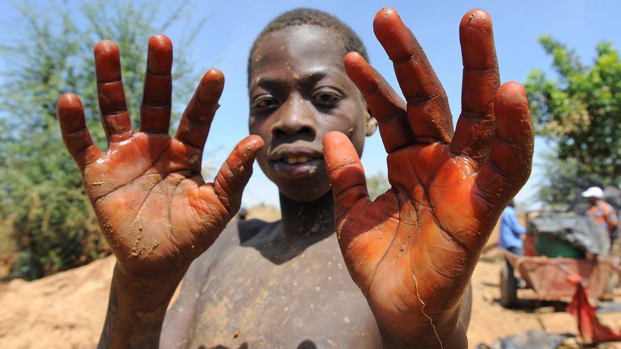 Hunger, Krankheit und Krieg: Afrikas Kinder kämpfen sich durch - n-tv.de