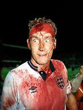 Da guckst du! Terry Butcher, harter englischer Hund, dem selbst eine Kopfverletzung nicht vom Spiel fernhalten kann.