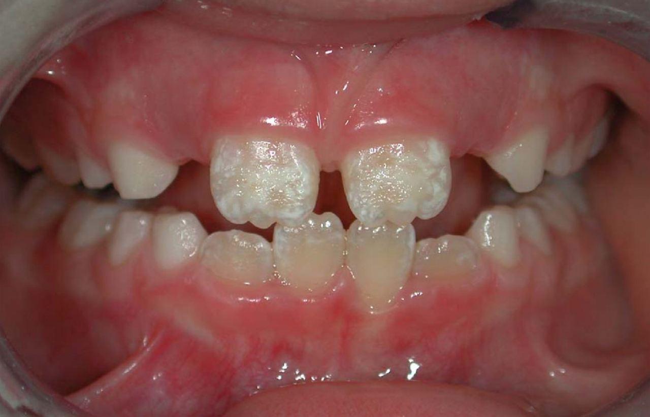 Wie lange besteht eine Zahnerkrankung?