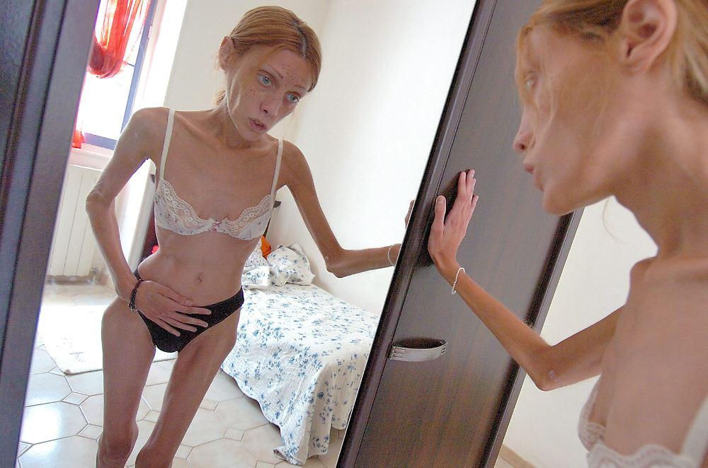 немецкие женщины анорексички фото...дома