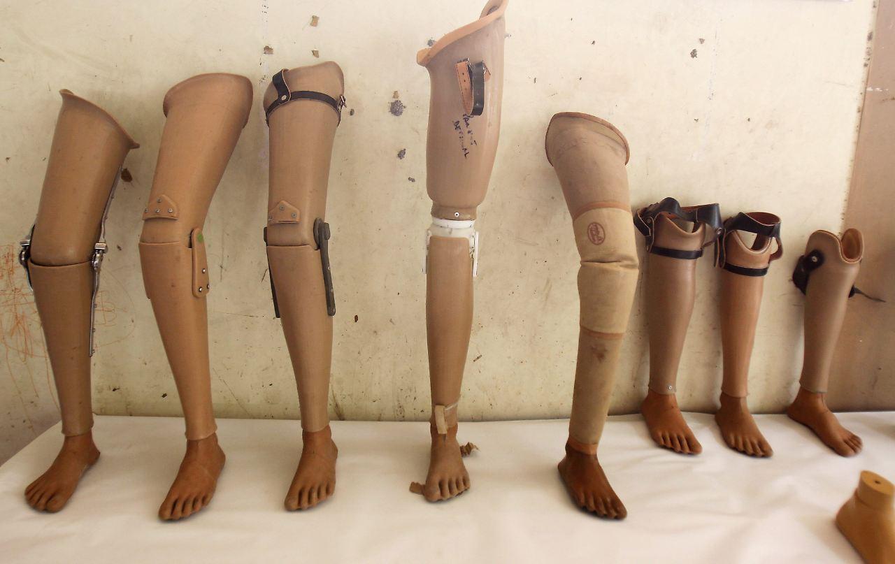 Amputiertes Bein statt Nachlass: Ekel-Paket für